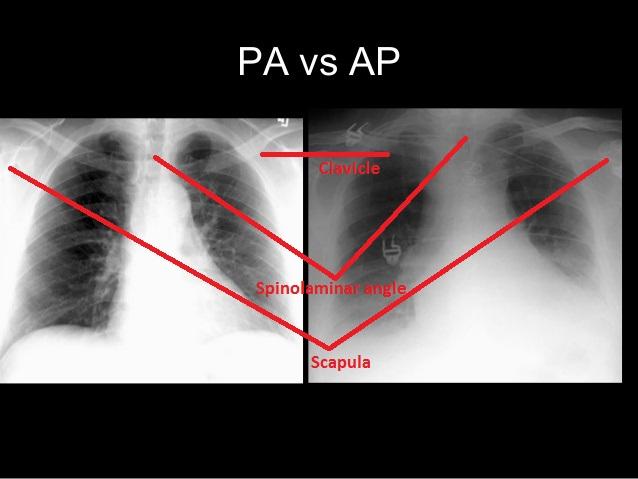 PA-vs-AP-view-Chest-Xray