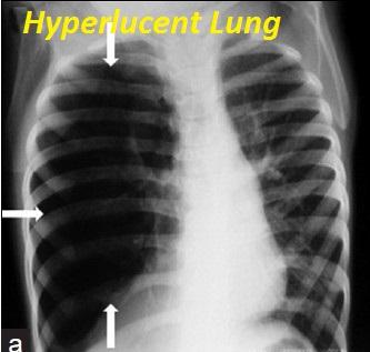 hyperlucent-lung
