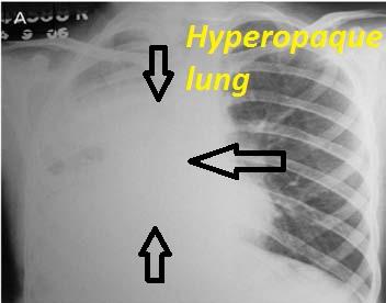 hyperopaque-lung