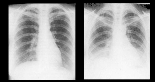 inspiratory-vs-expiratory-chest-xray